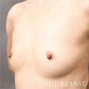 THE CLINIC(ザ・クリニック)の豊胸手術(胸の整形)の症例写真[ビフォー]