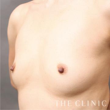 THE CLINIC(ザ・クリニック)の豊胸・胸の整形の症例写真[ビフォー]