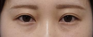 もとび美容外科クリニック新宿院のその他の美容整形の症例写真[ビフォー]