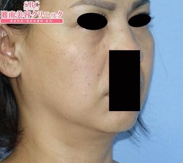 湘南美容クリニック 大阪梅田院の顔のしわ・たるみの整形(リフトアップ手術)の症例写真[ビフォー]