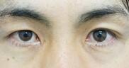 ガーデンクリニックの目・二重の整形の症例写真[ビフォー]
