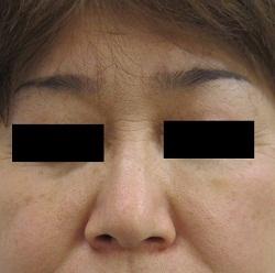 はなふさ美容皮膚科の顔のしわ・たるみの整形(リフトアップ手術)の症例写真[アフター]