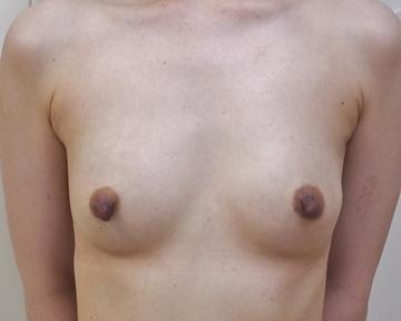 タウン形成外科クリニックの豊胸・胸の整形の症例写真[ビフォー]