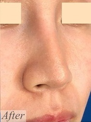 MIL CLINIC OSAKA(ミルクリニック)の症例写真[アフター]