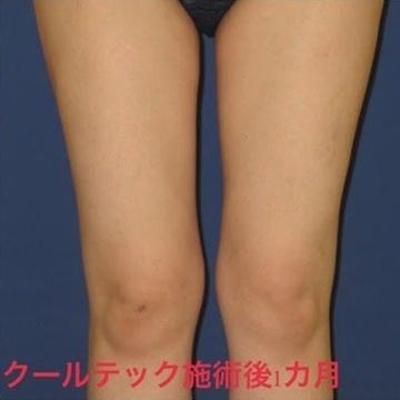 トキコクリニック 京都四条院の痩身、メディカルダイエットの症例写真[アフター]