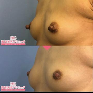 湘南美容クリニック 渋谷院の乳首・乳輪の整形の症例写真