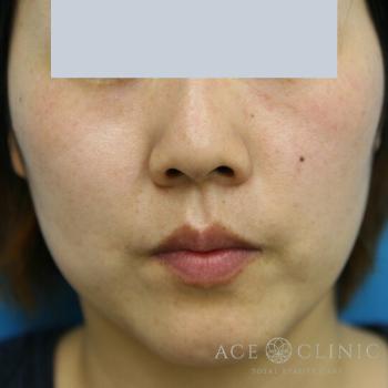 エースクリニックのシミ治療(シミ取り)・肝斑・毛穴治療の症例写真[アフター]