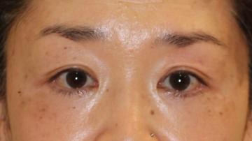 すなおクリニックの目元整形・クマ治療の症例写真[アフター]