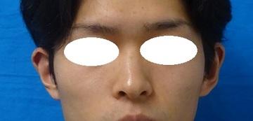 TCB 東京中央美容外科の耳の整形の症例写真[アフター]