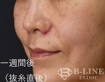 B-LINE CLINICの鼻の整形の症例写真[アフター]