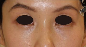 すなおクリニックの目元の整形、くま治療の症例写真[アフター]