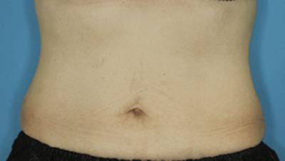 脂肪分解注射(BNLS neo)の症例写真[アフター]