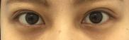 湘南美容クリニック福岡院の目・二重の整形の症例写真[アフター]