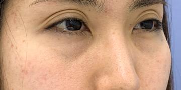 湘南美容クリニック 武蔵小杉院の目元整形・クマ治療の症例写真[ビフォー]