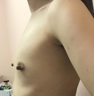 N クリニックの豊胸・胸の整形の症例写真[ビフォー]