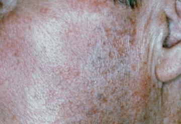 平岡皮膚科スキンケアクリニックのシミ治療(シミ取り)・肝斑・毛穴治療の症例写真[アフター]