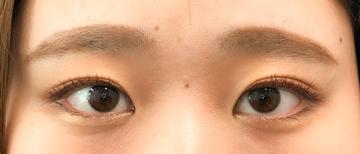 湘南美容クリニック 池袋西口院の目・二重の整形の症例写真[アフター]