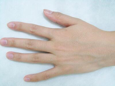 ひざ下・ひじ下・手指甲の脱毛の症例写真[ビフォー]