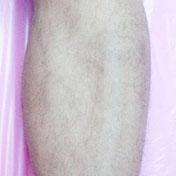 イデア美容皮膚科クリニックの医療レーザー脱毛の症例写真[アフター]
