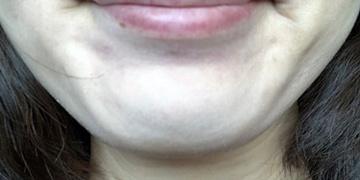 皮フ科 かわさきかおりクリニックの顔のしわ・たるみの整形(リフトアップ手術)の症例写真[アフター]