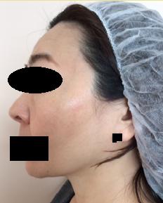 シミ治療・QスイッチYAGレーザーの症例写真[アフター]