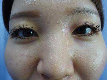 鹿児島三井中央クリニックの目・二重の整形の症例写真[ビフォー]