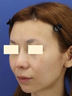 鼻の修正治療と額の形成の症例写真[アフター]
