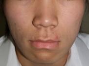 タウン形成外科クリニックのニキビ治療・ニキビ跡の治療の症例写真[アフター]