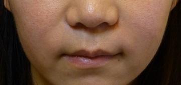 さやか美容クリニック・町田の顔のしわ・たるみの整形(リフトアップ手術)の症例写真[アフター]