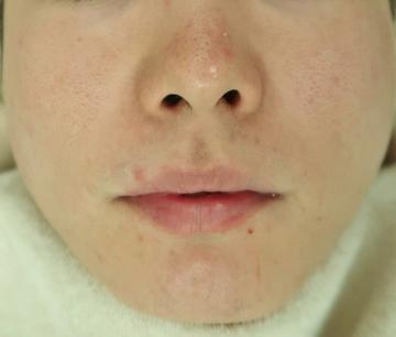 スキンコスメクリニックグループのニキビ治療・ニキビ跡の治療の症例写真[アフター]