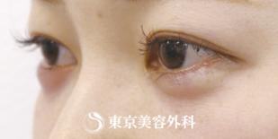 東京美容外科の症例写真[アフター]