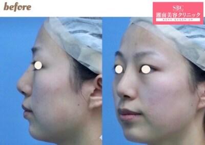 プリマリフト+ヒアルロン酸(顎)の症例写真[ビフォー]