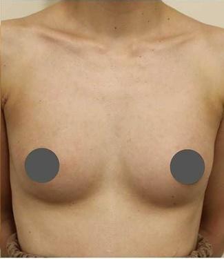 広島プルミエクリニックの豊胸・胸の整形の症例写真[アフター]