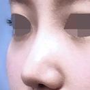 SBCプロテーゼ・鼻尖形成・鼻中隔延長/術後1ヶ月[アフター]