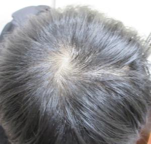 エルクリニックの薄毛治療の症例写真[ビフォー]