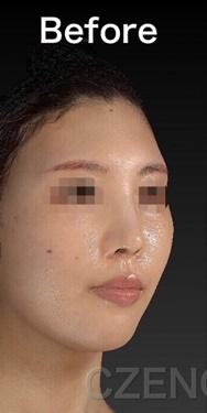 CZEN GINZA CLINIC (シゼン ギンザ クリニック)の鼻の整形の症例写真[ビフォー]