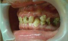 メタルボンドクラウン法による虫歯治療の症例写真の症例写真[ビフォー]