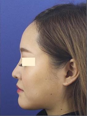 プロテーゼ・鼻中隔延長の症例写真[アフター]