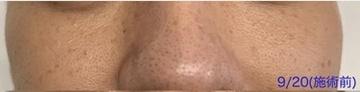 銀座小町クリニックのシミ取り・肝斑・毛穴治療の症例写真[ビフォー]