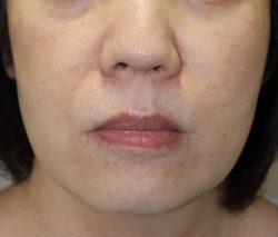 すず美容形成外科医院 【女性専門クリニック】の顔のしわ・たるみの整形の症例写真[ビフォー]