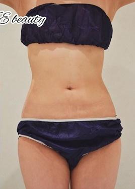 L.O.V.E beauty clinic(ラブビューティークリニック)の脂肪吸引の症例写真[アフター]