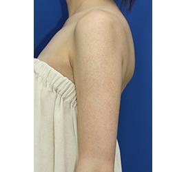 オザキクリニック LUXE新宿のその他の美容皮膚科治療の症例写真[アフター]