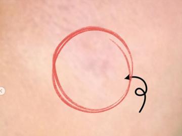 広島プルミエクリニックのほくろ除去・あざ治療・イボ治療の症例写真[アフター]