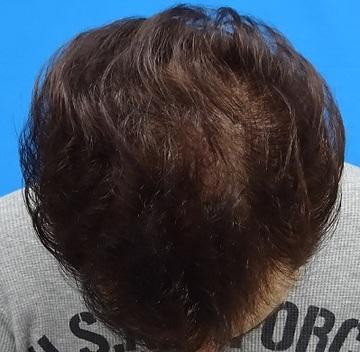 TCB東京中央美容外科の薄毛治療の症例写真[アフター]