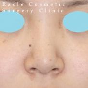 新宿ラクル美容外科クリニックの鼻の整形の症例写真[アフター]