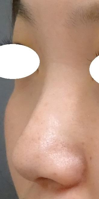 TCB 東京中央美容外科の鼻の整形の症例写真[ビフォー]