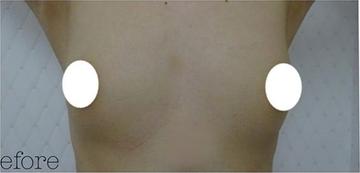 ジョウクリニックの豊胸・胸の整形の症例写真[ビフォー]