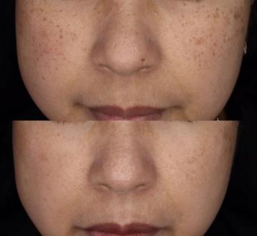 ゆみ美容皮膚科クリニックのシミ治療(シミ取り)・肝斑・毛穴治療の症例写真