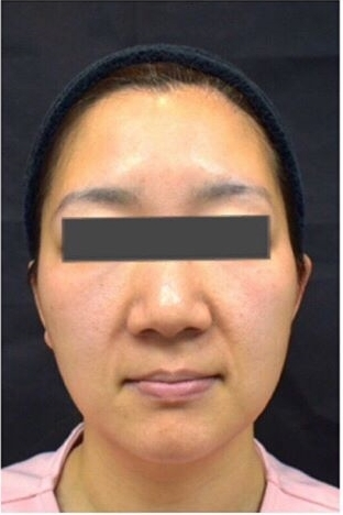 ジョウクリニックの鼻の整形の症例写真[ビフォー]