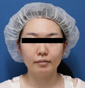 の脂肪吸引の症例写真[ビフォー]